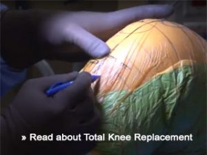 total knee replacement article