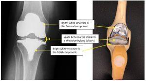 knee implant materials